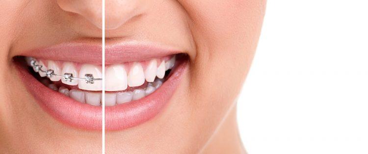 Orthodontics Sydney
